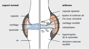 arthrose4